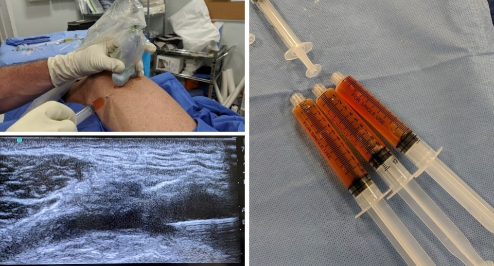 drain knee effusion