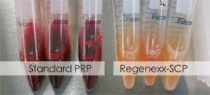 Regenexx PRP vs Standard PRP = Precautions before and after PRP injections