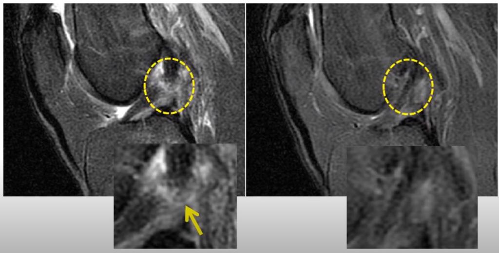 MRI of ACL tear