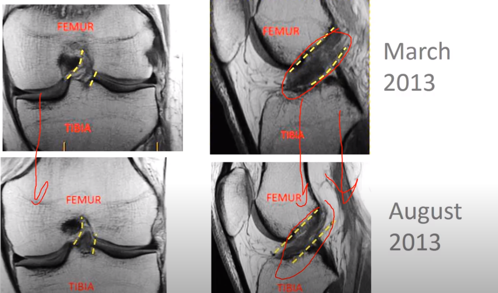 MRI of ACL before-and-after Regenexx stem cell procedure