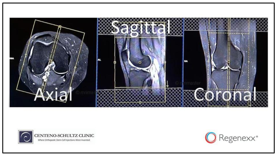 how to read knee MRI
