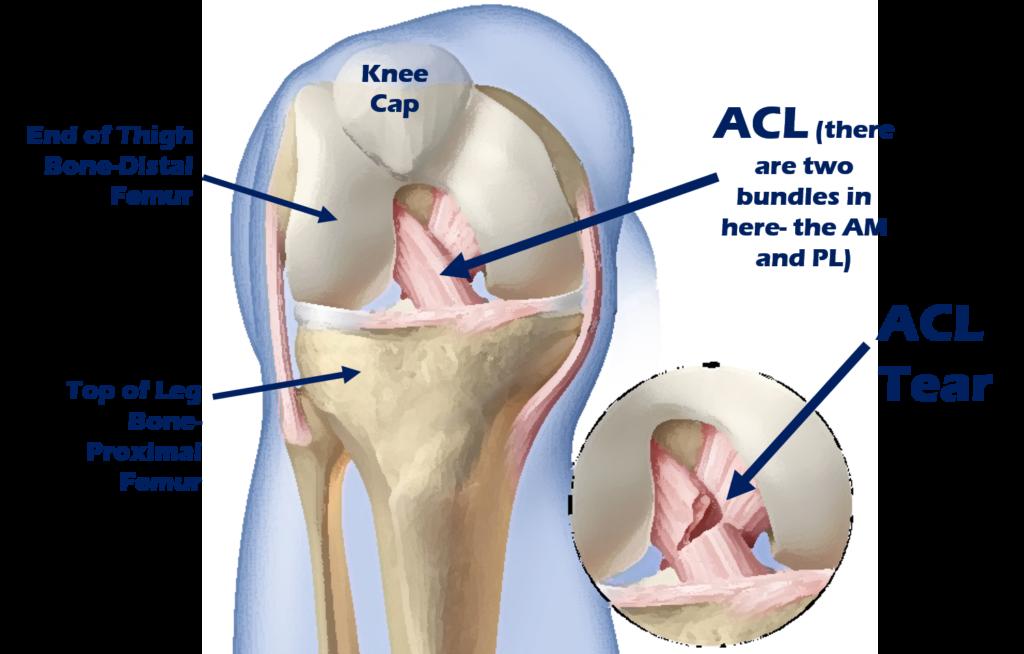 ACL surgery alternative