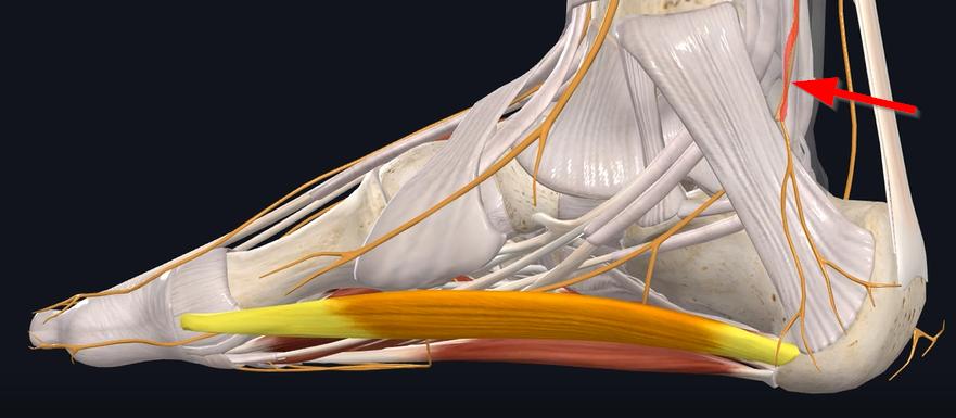 Baxter's Neuropathy medial nerve