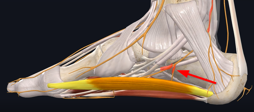 medial nerve position in Baxter's Neuropathy