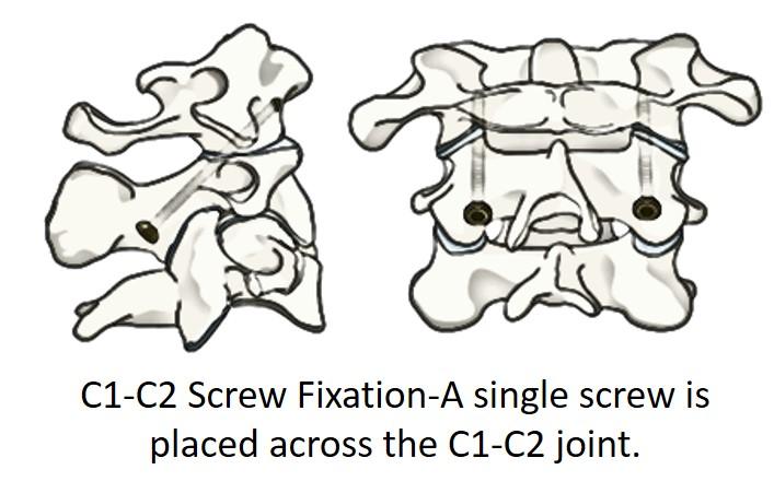 C1-C2 screw fixation or magerl technique