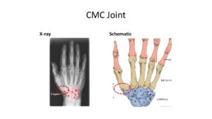 cmc joint