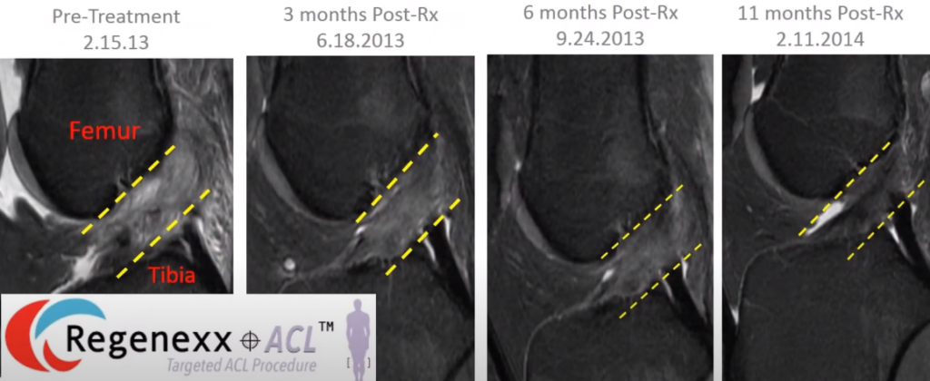 MRI of ACL healing after stem cell procedure in an older patient