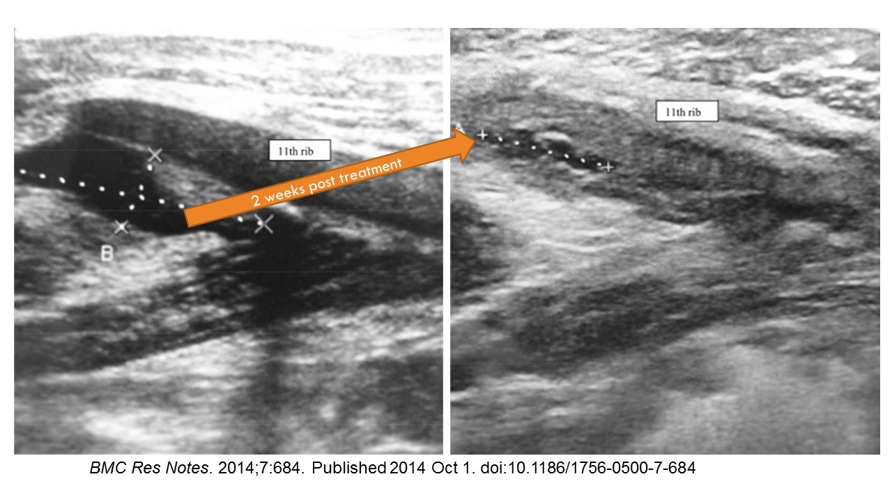 oblique muscle injury