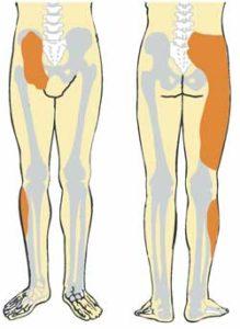 Ehlers Danlos back pain