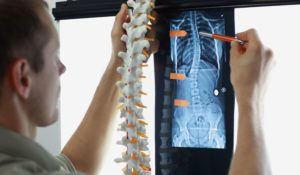 Non-Surgical Treatment Options for Adult Degenerative Scoliosis