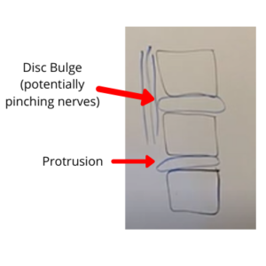 disc bulge and protrusion in spine - herniated disc