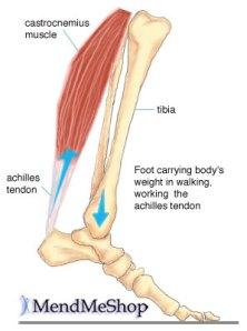 achilles-tendon3
