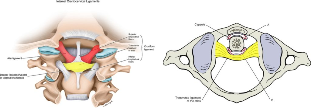 alar and transverse ligaments in craniocervical instability treatment