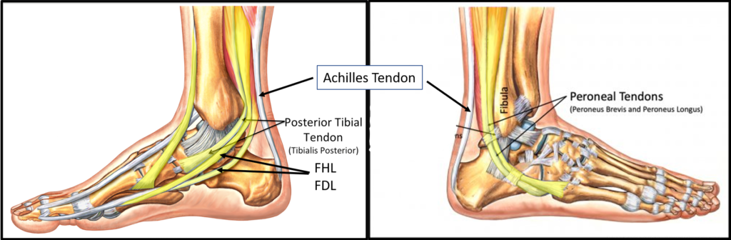 ankle tendon tear