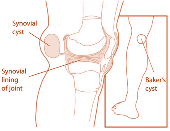 baker's cyst might be the source of pain in the back of the knee