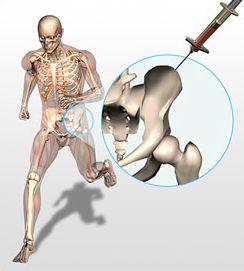 bone marrow stem cells
