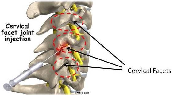cervical facet joint injection for cervical facet syndrome