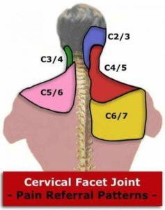 cervical facet joint