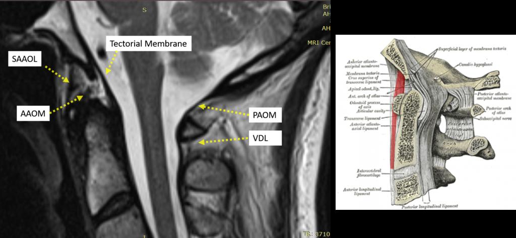 craniocervical ligaments - C1-c2