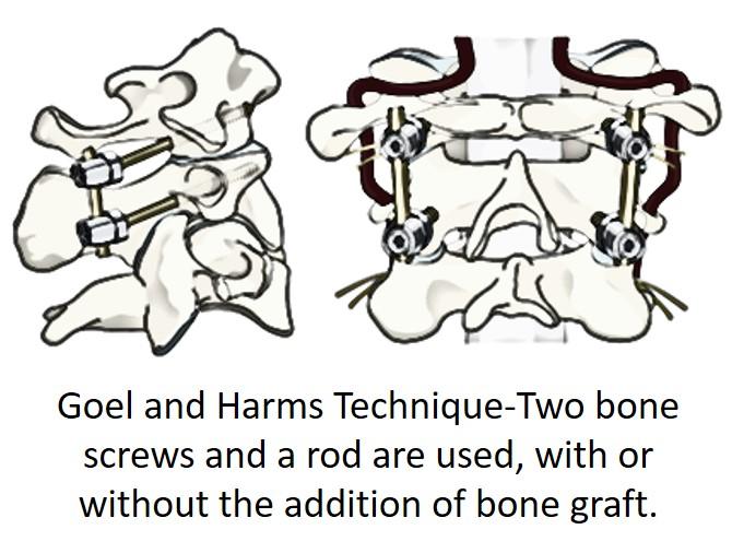goel and harms C1-C2 fusion technique