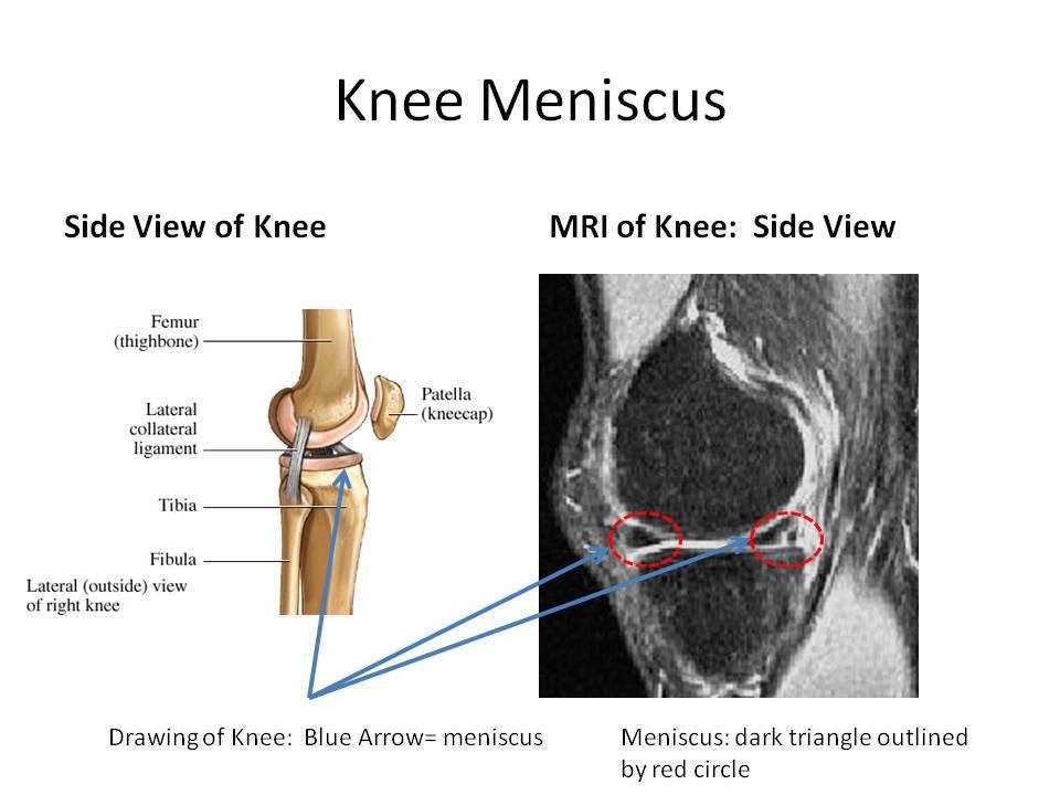 Knee Mensicus2
