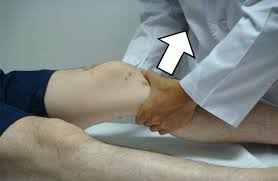 how to tell if you tore your ACL