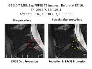 Lonnies MRI Revised Sagitial