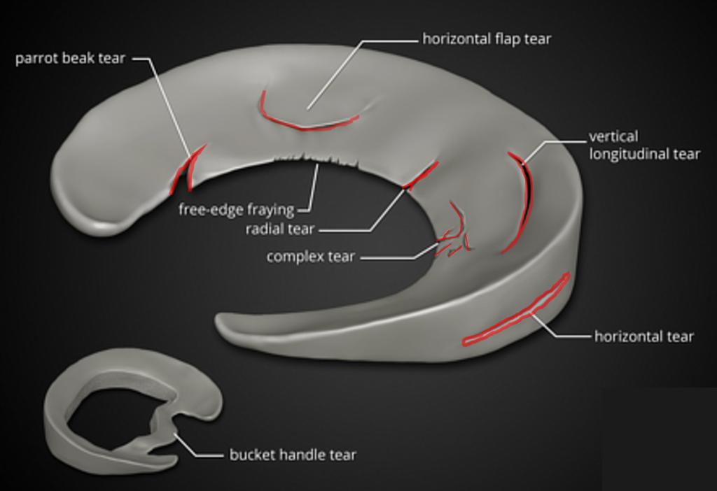 meniscus tear recovery