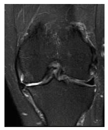regenerative orthopedic medicine & meniscus tears