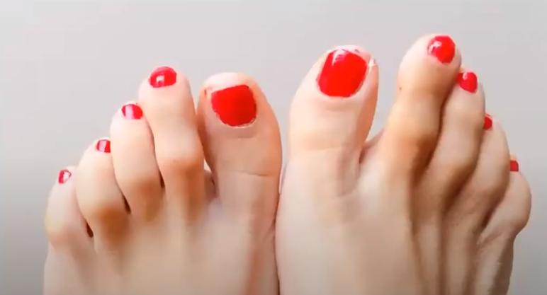 Morton's toe