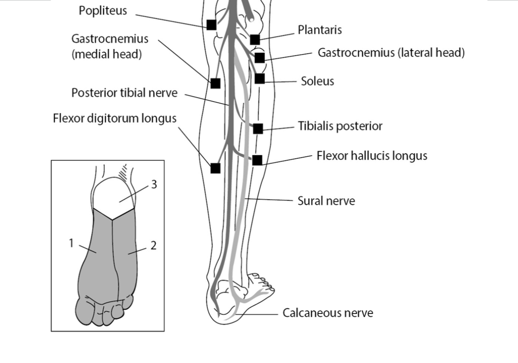 nerves that can be considered when you get a tibial nerve injury