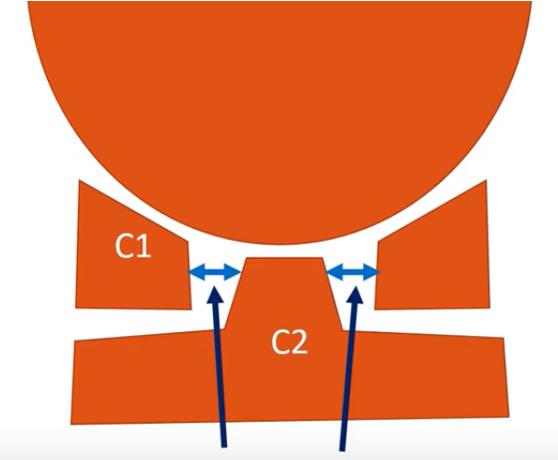 peridontal space in CCI