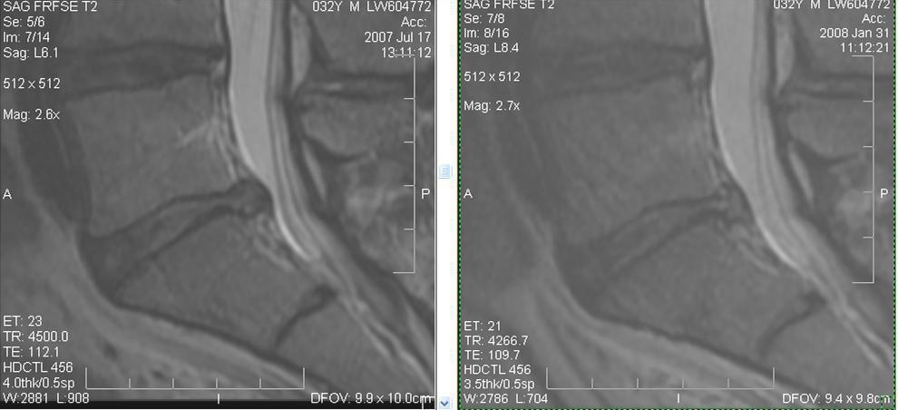 regenexx-lumbar-disc-info-patientonly-jpg3