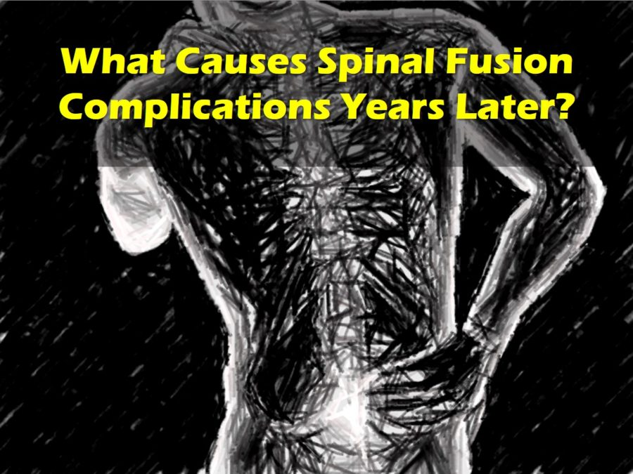 spinal fusion complications years later